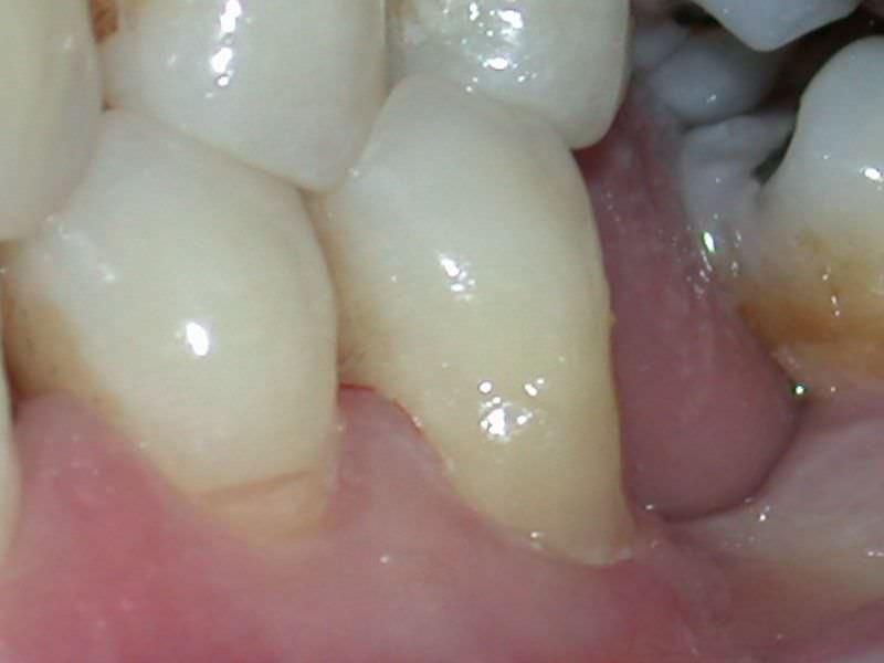 Odontología Conservadora con Láser en Clínica Dental Odontic.