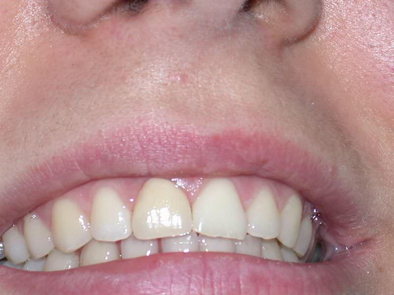 Rehabilitación del incisivo central superior en Clínica Dental Odontic.