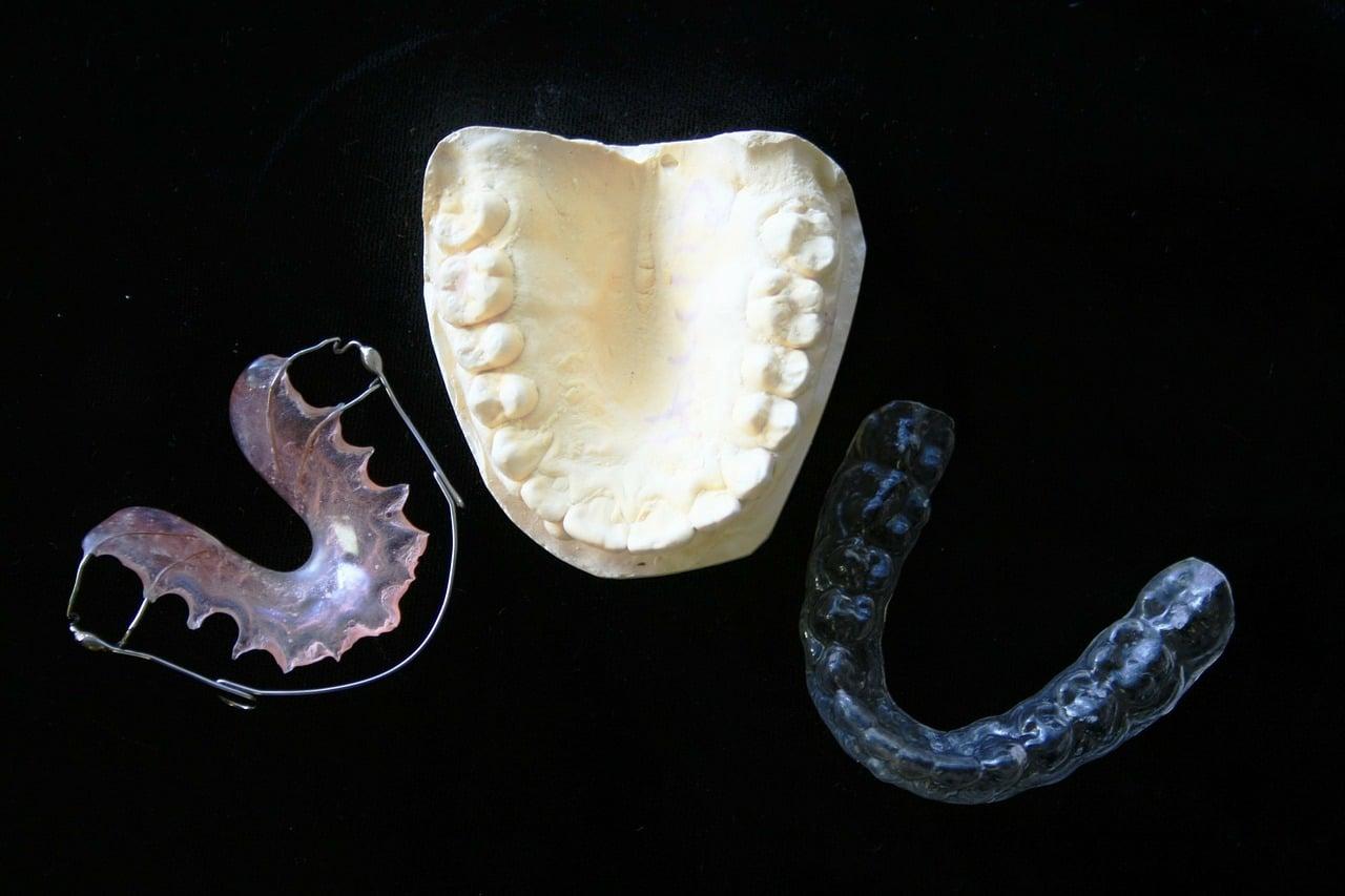 El porqué de la ortodoncia transparente
