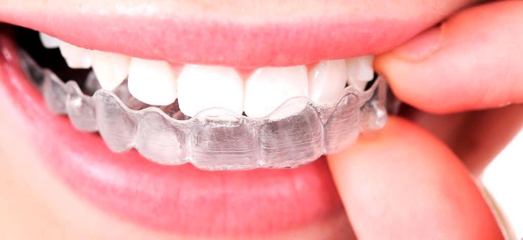 ¿Ortodoncia invisible o Brackets?