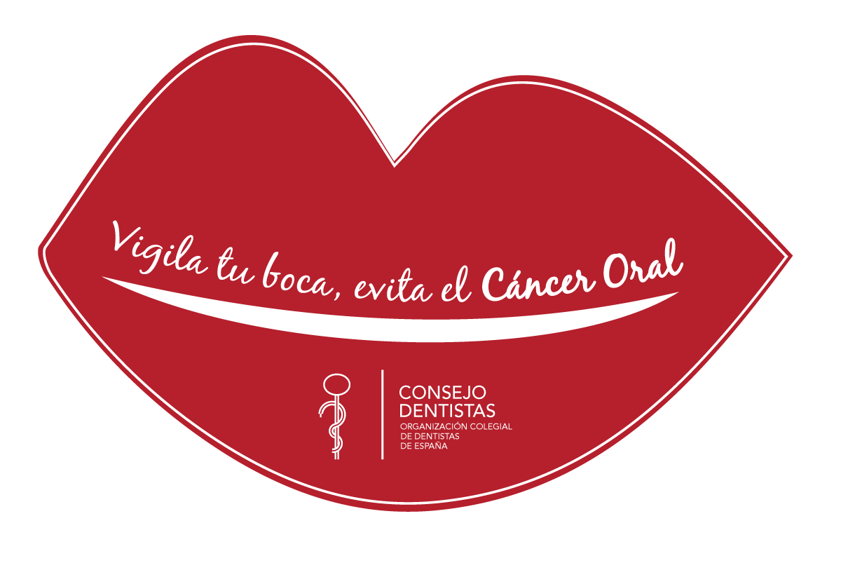 Cancer oral.