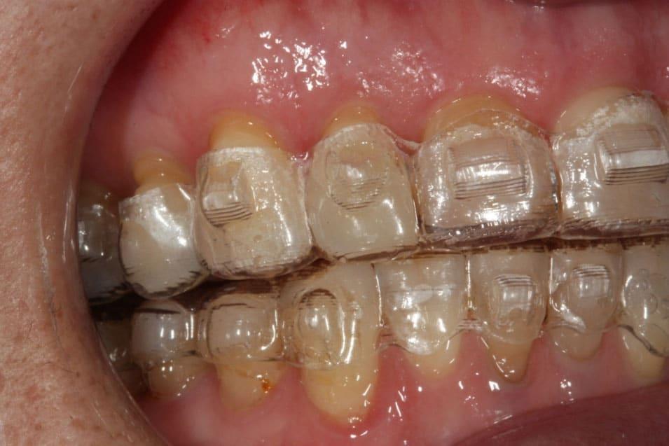 Ortodoncia transparente con Invisalign®