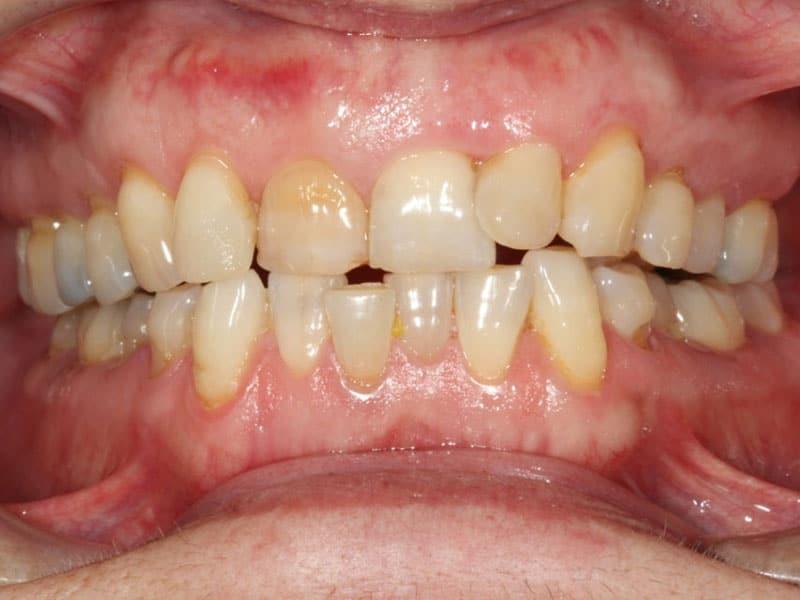 Ortodoncia transparente con Invisalign®.