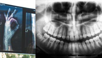 Visita a tu dentista para mantener la salud oral y salud en general.