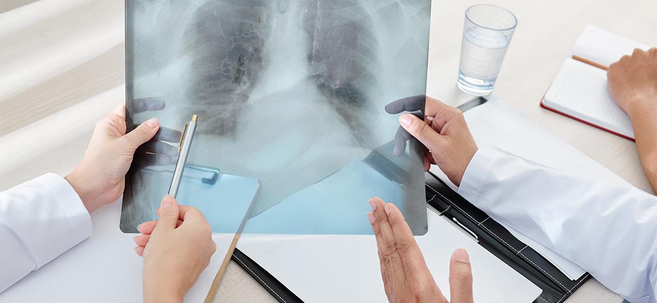 Mantener una buena higiene oral evita enfermedades de las vías respiratorias.