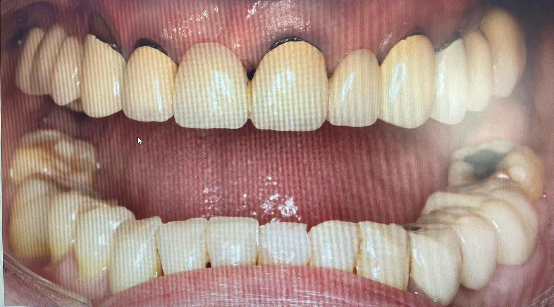 Paciente real con necesidad de cambio de prótesis para mejorar su sonrisa.